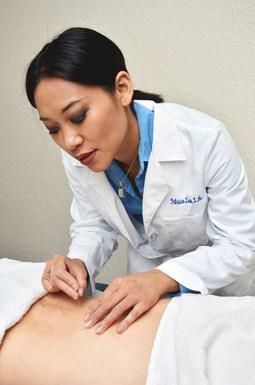 Best Acupuncturists