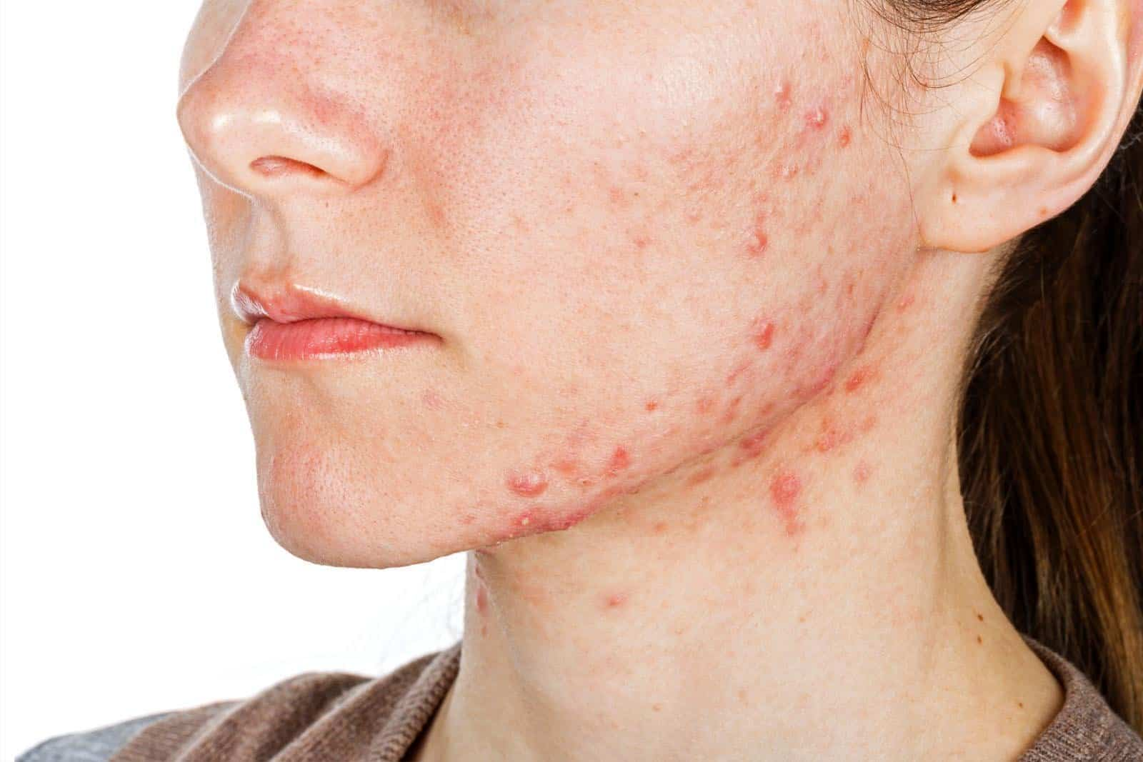 http://alamoheightswellness.com/naet-allergy-elimination/