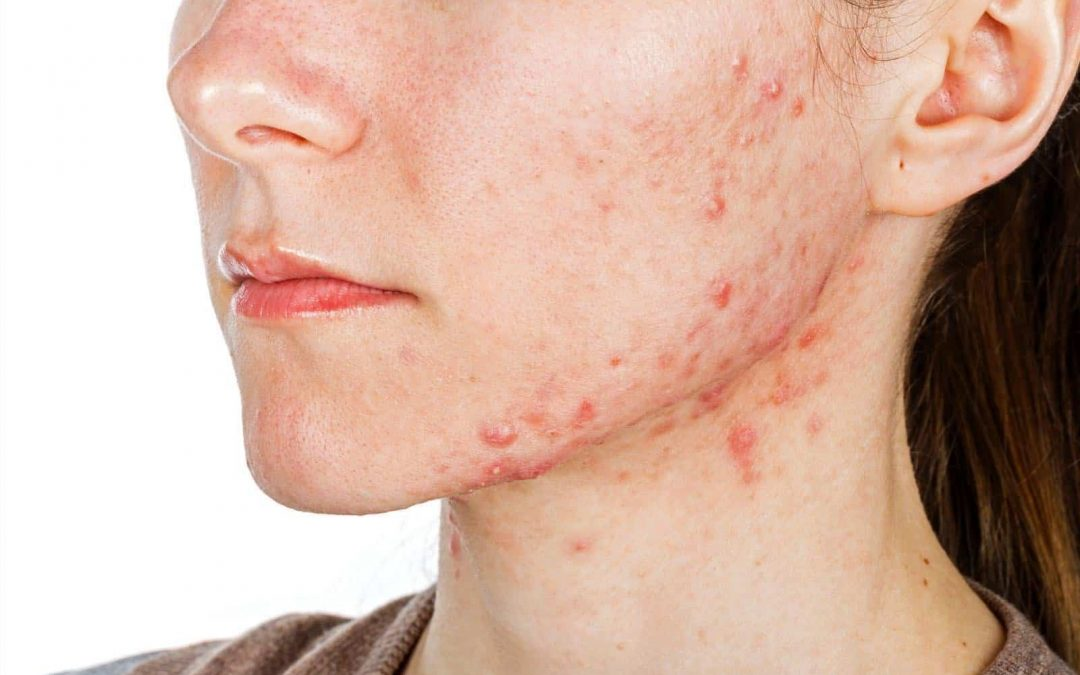 Skin Disorders – Effective Treatments